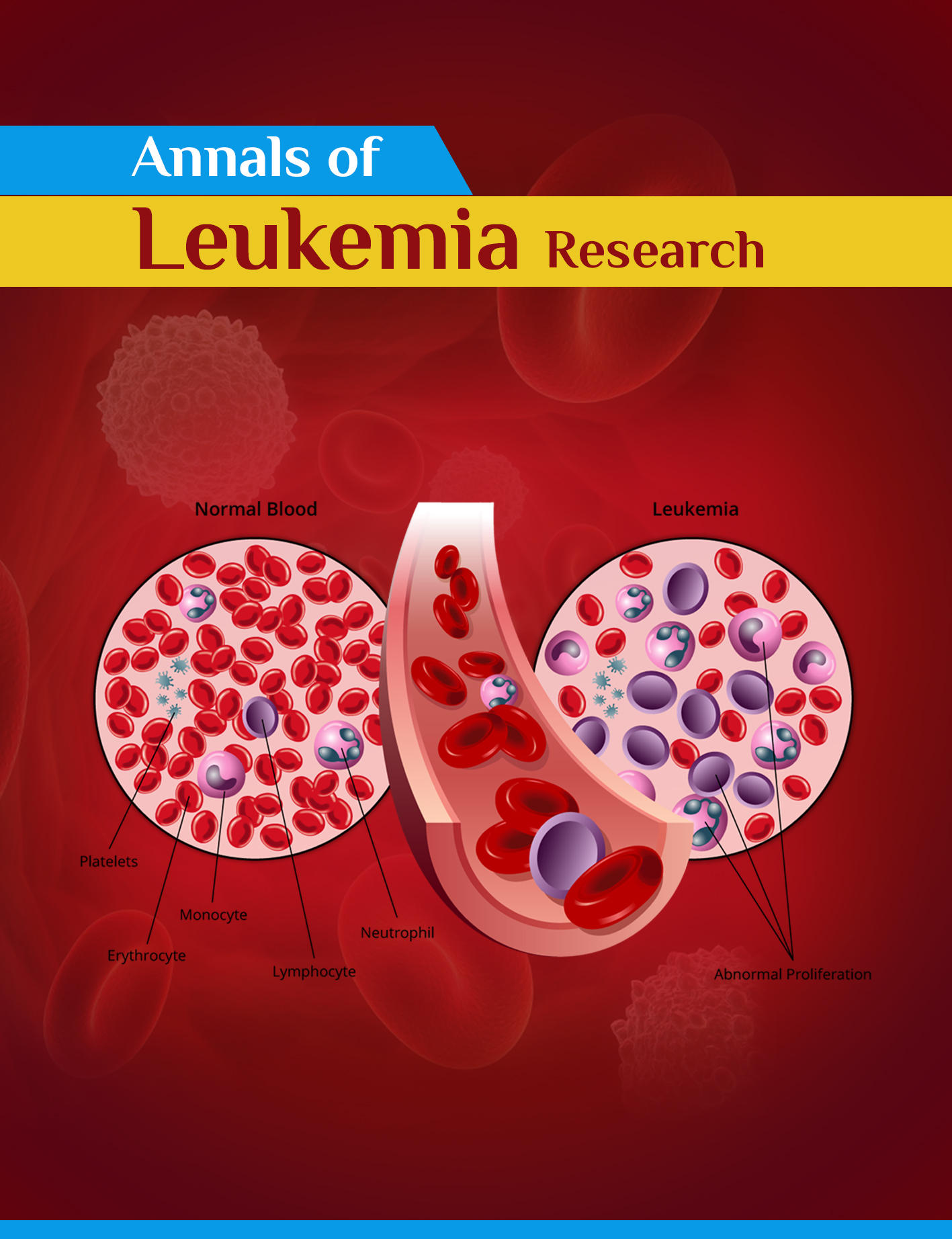 Annals of Leukemia Research | Somato Publications